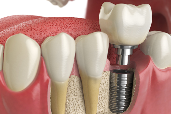Dental Implants Are Typically Used