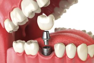 Understanding The Basics Of Dental Implants