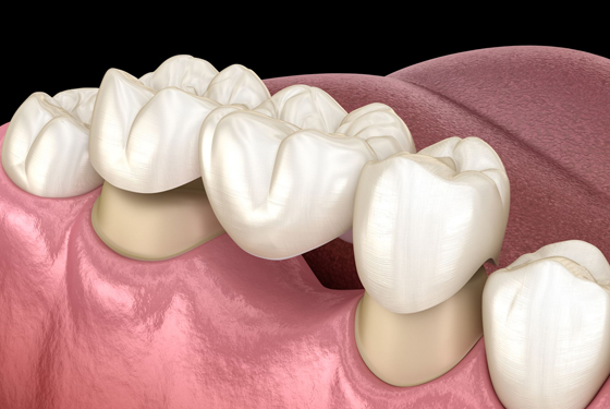What Is Dental Bridge Work