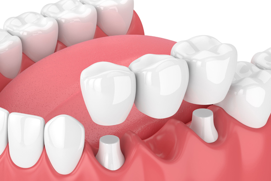 Why Might Dental Bridges Be A Necessity