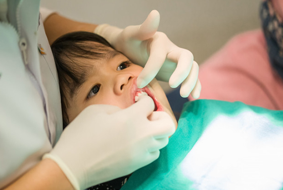 Why Might Fluoride Treatments Be Needed